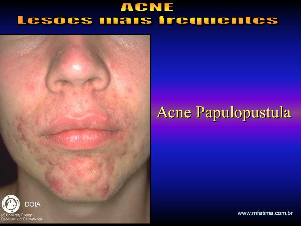 Acne Papulopustula www.mfatima.com.br