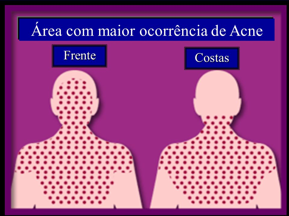 Área com maior ocorrência de Acne Frente Costas