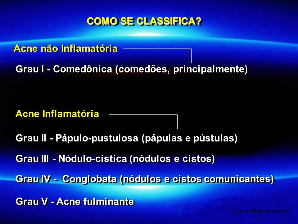 Grau I - Comedônica (comedões, principalmente) Acne Inflamatória Grau II - Pápulo-pustulosa (pápulas e pústulas) Grau III - Nódulo-cística (nódulos e cistos) Grau IV - Conglobata (nódulos e cistos comunicantes) Grau V - Acne fulminante Grau I - Comedônica (comedões, principalmente) Acne Inflamatória Grau II - Pápulo-pustulosa (pápulas e pústulas) Grau III - Nódulo-cística (nódulos e cistos) Grau IV - Conglobata (nódulos e cistos comunicantes) Grau V - Acne fulminante COMO SE CLASSIFICA.