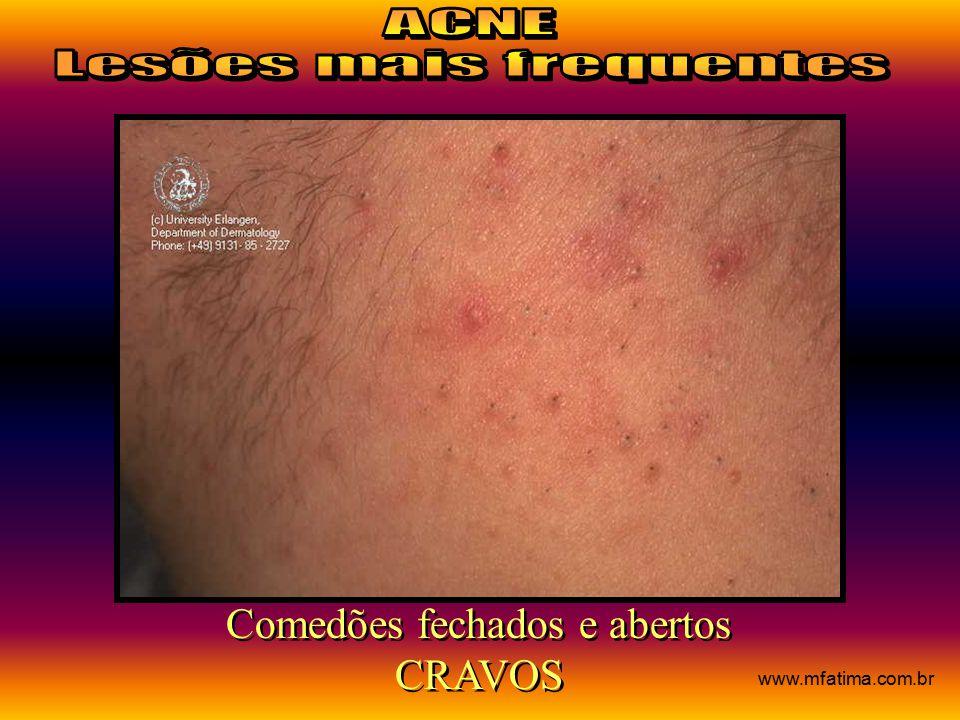 Comedões fechados e abertos CRAVOS Comedões fechados e abertos CRAVOS www.mfatima.com.br