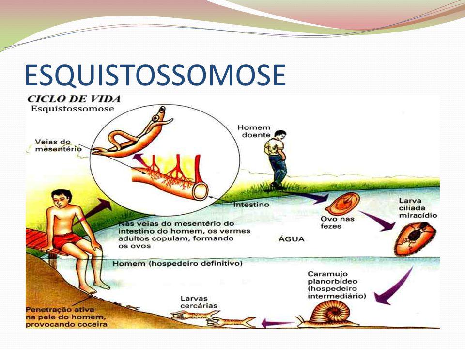 ESQUISTOSSOMOSE