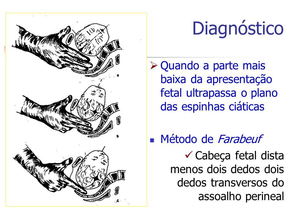 Diagnóstico  Quando a parte mais baixa da apresentação fetal ultrapassa o plano das espinhas ciáticas Método de Farabeuf Cabeça fetal dista menos doi