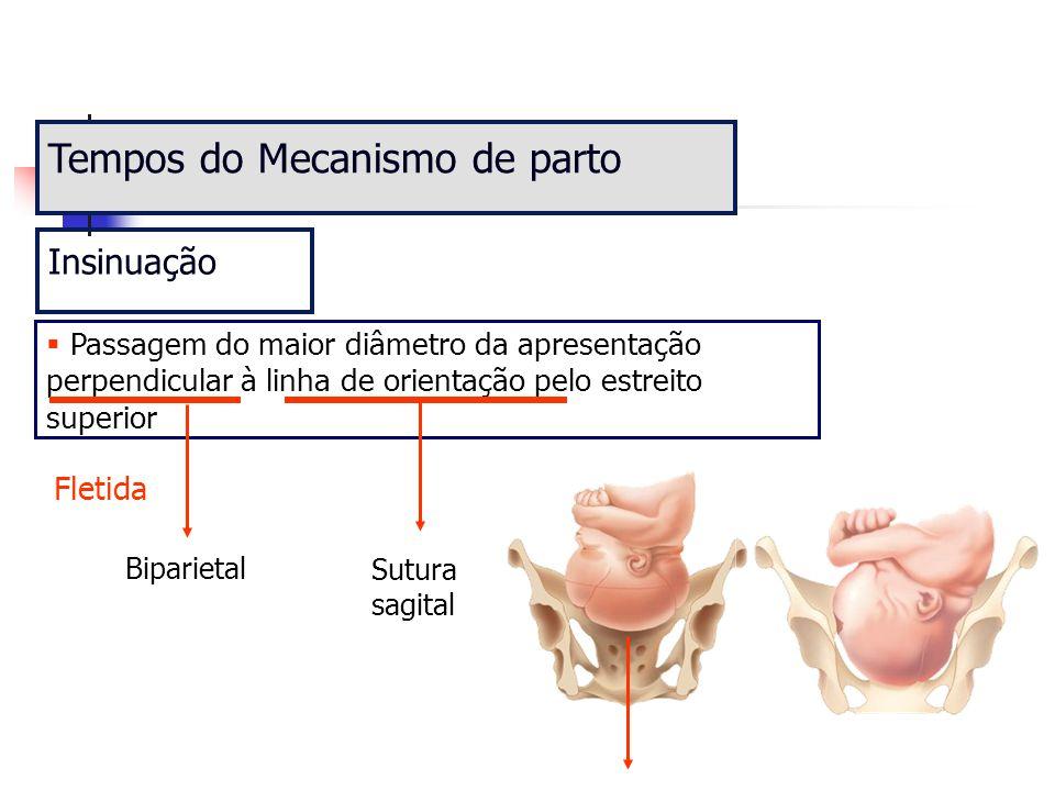 Tempos do Mecanismo de parto  Passagem do maior diâmetro da apresentação perpendicular à linha de orientação pelo estreito superior Insinuação Bipari