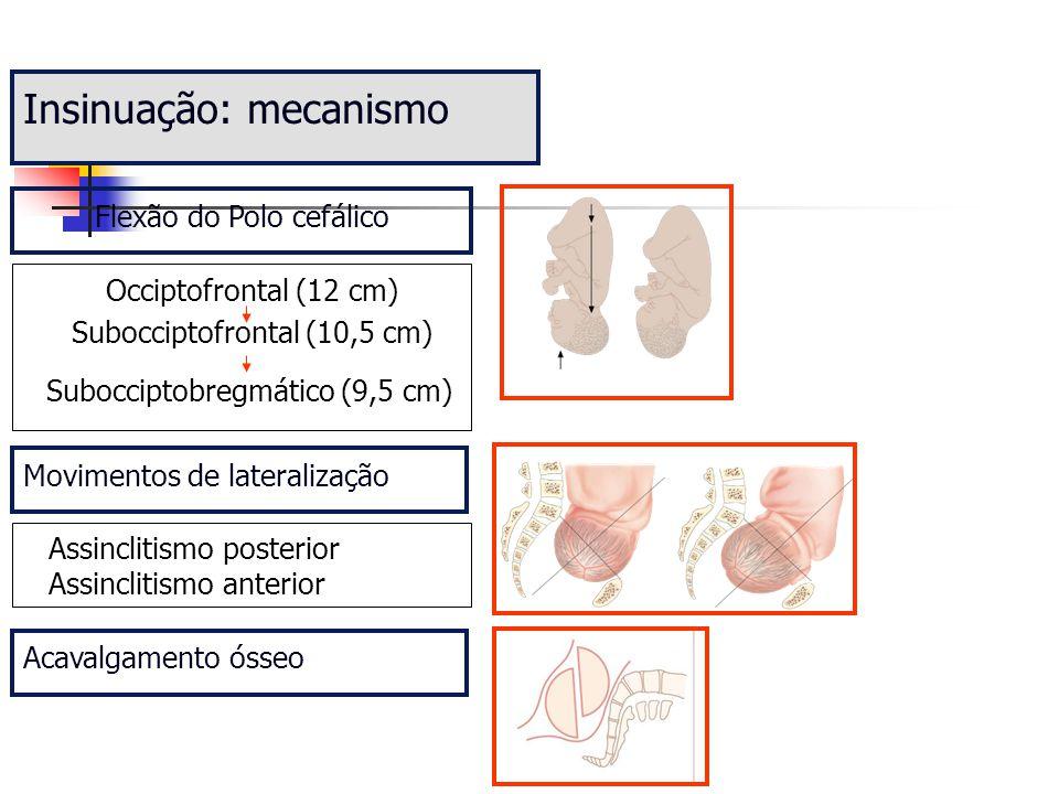 Insinuação: mecanismo Movimentos de lateralização Assinclitismo posterior Assinclitismo anterior Acavalgamento ósseo Subocciptobregmático (9,5 cm) Sub