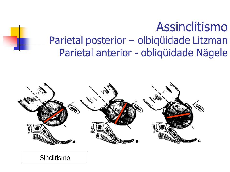 Assinclitismo Parietal posterior – olbiqüidade Litzman Parietal anterior - obliqüidade Nägele ASSINCLITISMO Sinclitismo