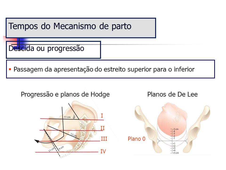 Tempos do Mecanismo de parto Descida ou progressão  Passagem da apresentação do estreito superior para o inferior Progressão e planos de HodgePlanos