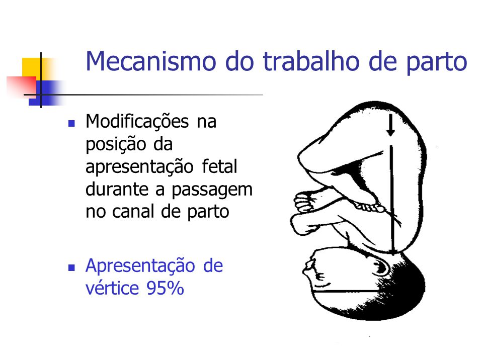 Flexão  Reduzir os diâmetros da apresentação As contrações uterinas obriga a cabeça a realizar um movimento de báscula Diametro occípito –frontal (12cm) Substituido por outro menor suboccípito – bregmático (9,5cm)  Diagnóstico Toque vaginal – reconhece pequena fontanela próxima centro canal de parto