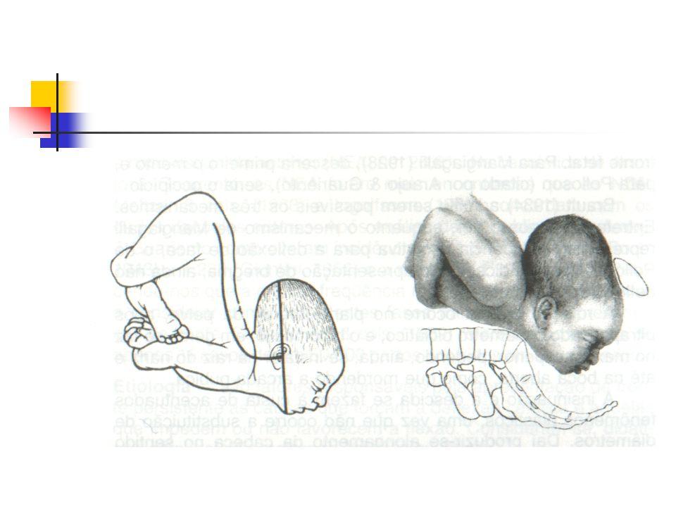 Tempos do Mecanismo de parto Rotação Interna  Objetiva colocar linha de orientação da apresentação no diâmetro anteroposterior do estreito inferior Sutura sagital Fletida  O ponto de referência fetal se desloca para a púbis Lâmbda