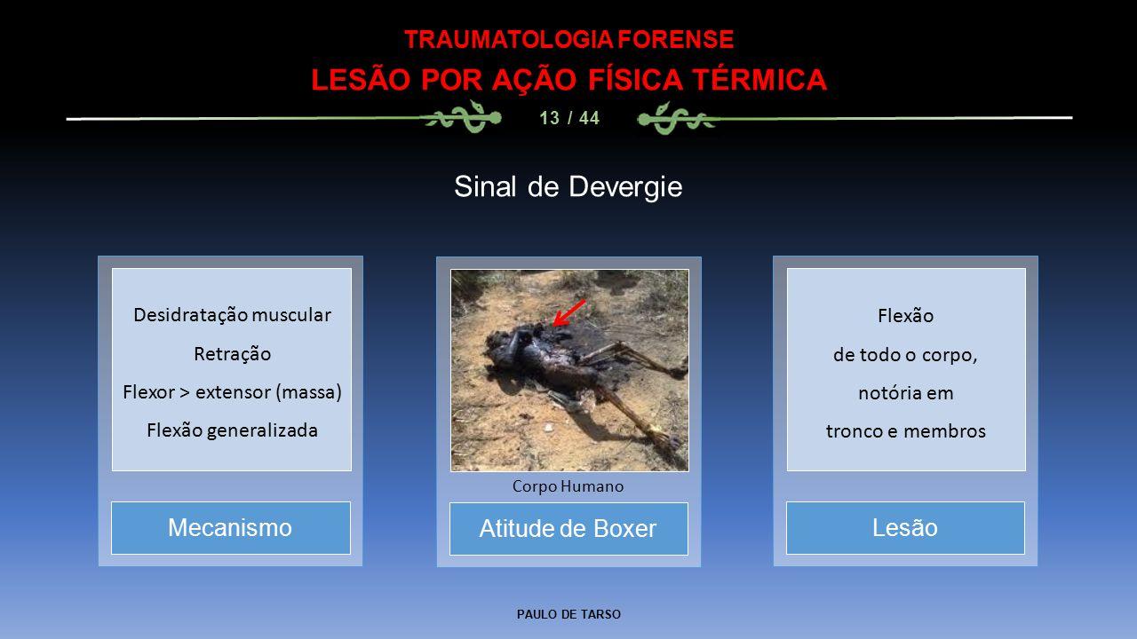 PAULO DE TARSO TRAUMATOLOGIA FORENSE LESÃO POR AÇÃO FÍSICA TÉRMICA 13 / 44 Sinal de Devergie Atitude de Boxer Corpo Humano MecanismoLesão Desidratação