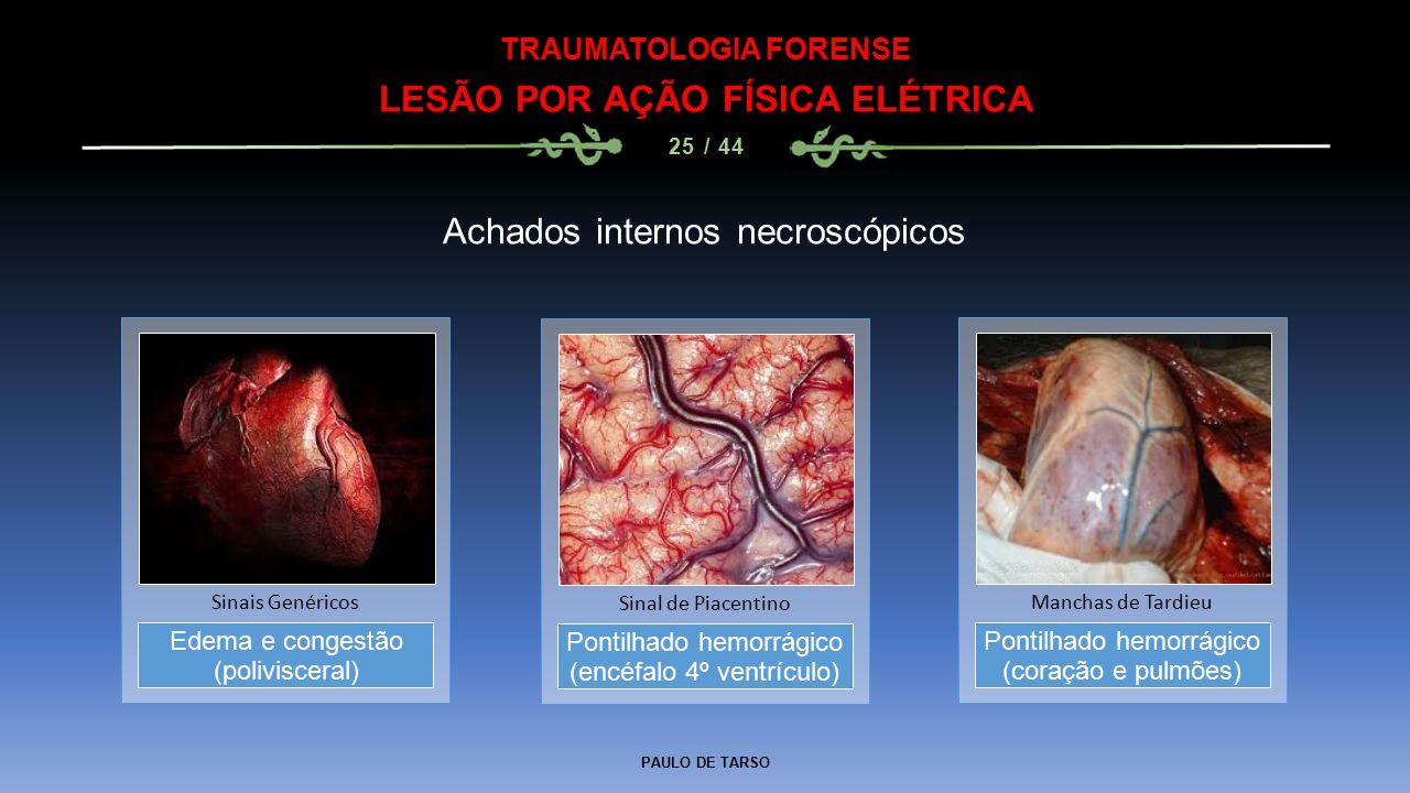 PAULO DE TARSO TRAUMATOLOGIA FORENSE LESÃO POR AÇÃO FÍSICA ELÉTRICA 25 / 44 Achados internos necroscópicos Pontilhado hemorrágico (encéfalo 4º ventrículo) Sinal de Piacentino Edema e congestão (polivisceral) Sinais Genéricos Pontilhado hemorrágico (coração e pulmões) Manchas de Tardieu