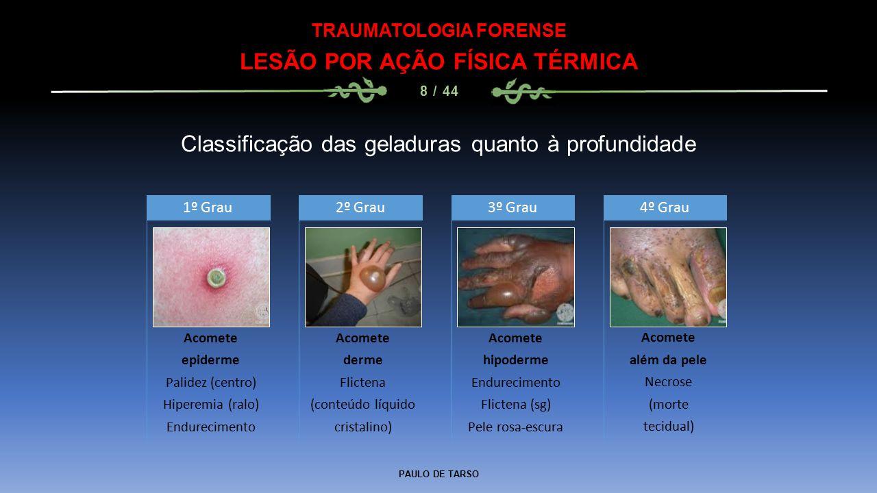 PAULO DE TARSO TRAUMATOLOGIA FORENSE LESÃO POR AÇÃO FÍSICA TÉRMICA 8 / 44 Classificação das geladuras quanto à profundidade Acomete epiderme Palidez (