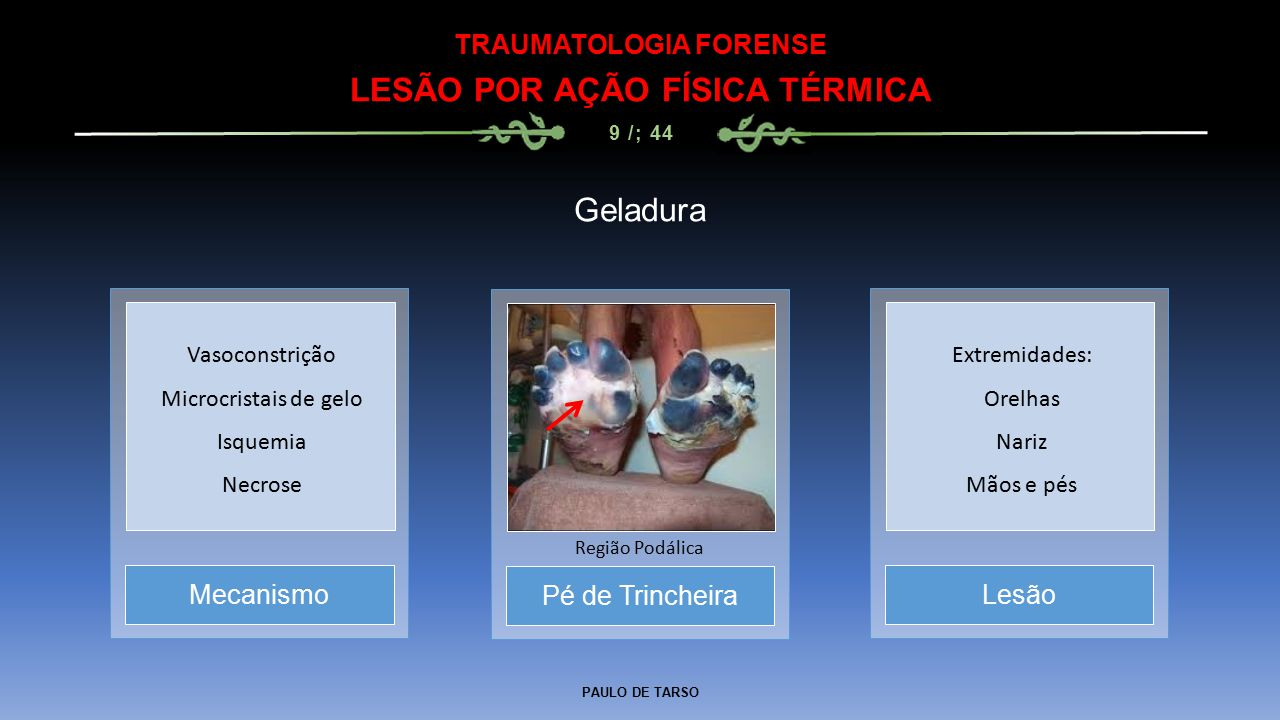PAULO DE TARSO TRAUMATOLOGIA FORENSE LESÃO POR AÇÃO BAROPÁTICA 41 / 44 Barotraumas Ouvido Perfuração Timpânica Cérebro Embolia Gasosa Pulmão Hemorragia