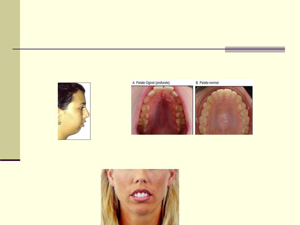 Doença do Refluxo Gastresofágico Uma das causas frequentes de tosse crônica Sintomas: Pirose e regurgitação Ausência não exclui o diagnóstico