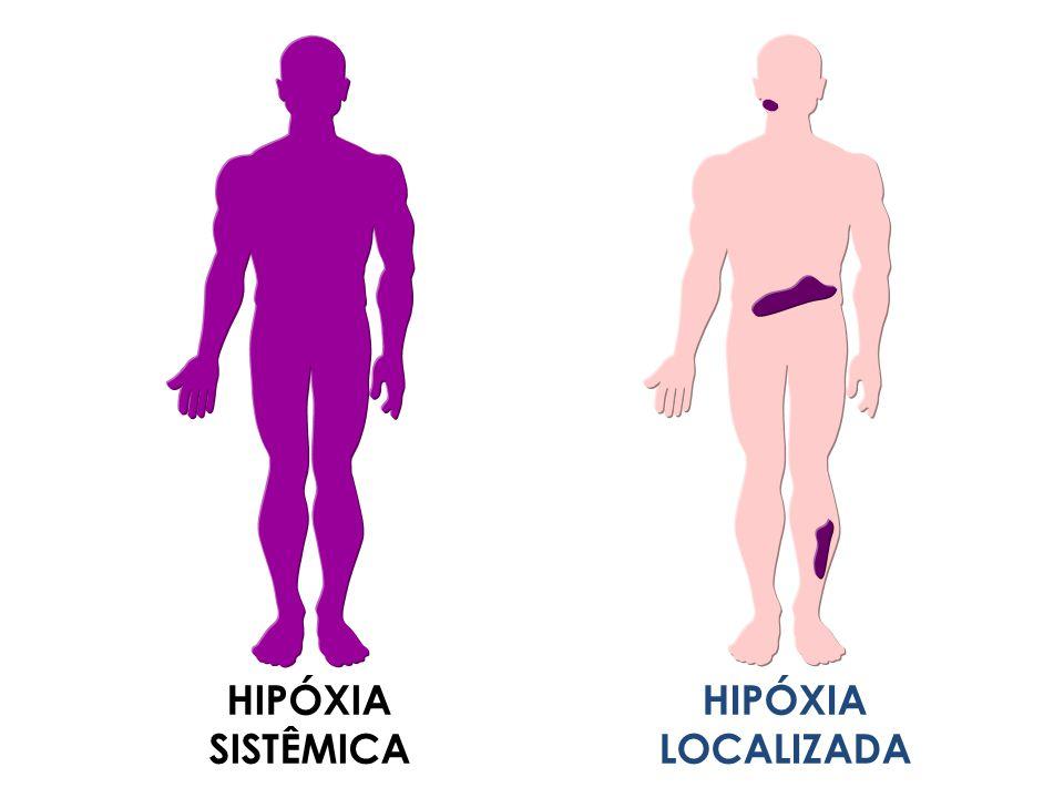 HIPÓXIA SISTÊMICA HIPÓXIA LOCALIZADA