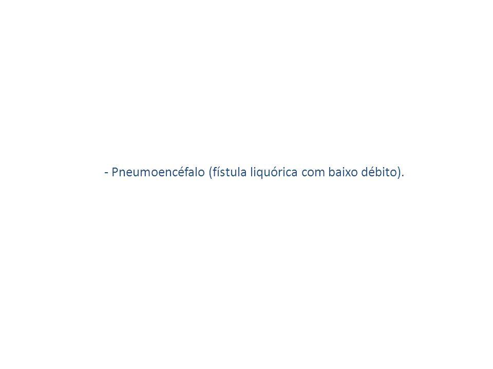 - Pneumoencéfalo (fístula liquórica com baixo débito).