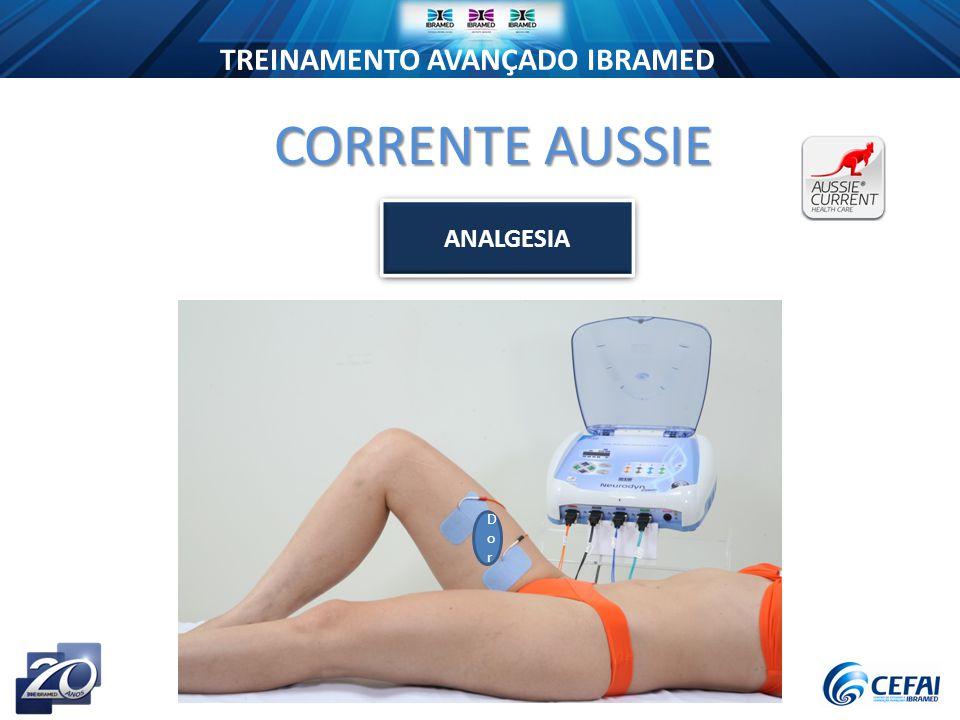 TREINAMENTO AVANÇADO IBRAMED CORRENTE AUSSIE ANALGESIA DorDor