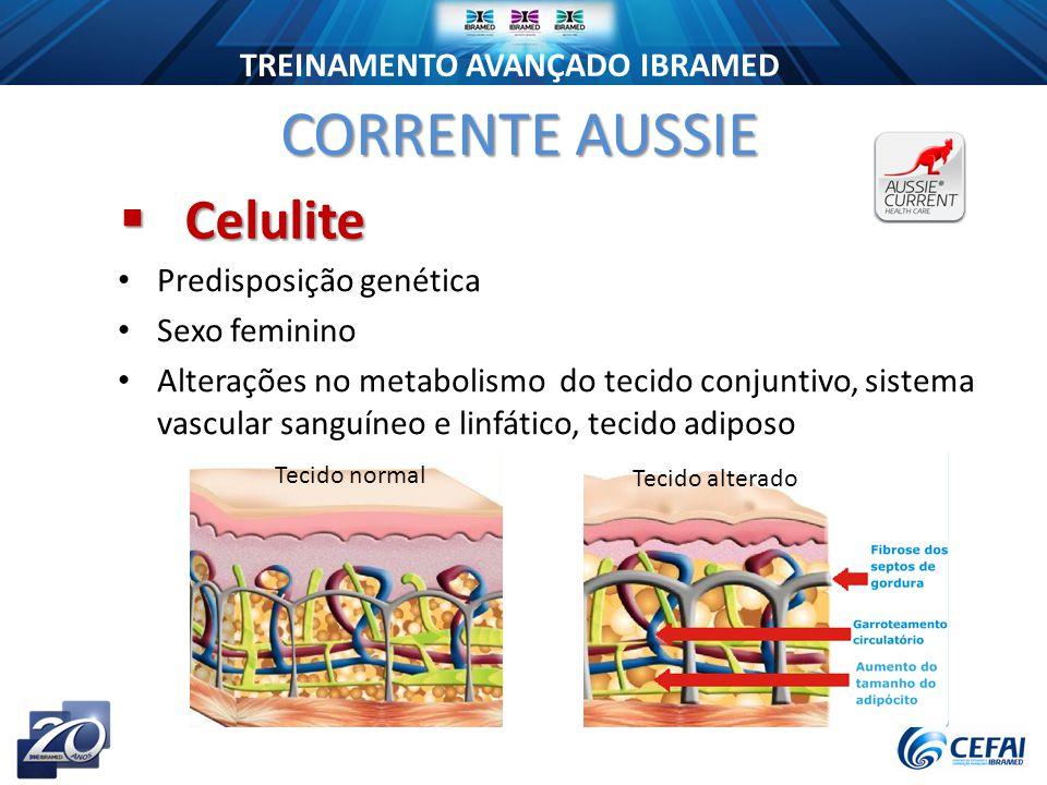TREINAMENTO AVANÇADO IBRAMED Predisposição genética Sexo feminino Alterações no metabolismo do tecido conjuntivo, sistema vascular sanguíneo e linfático, tecido adiposo Tecido normal Tecido alterado CORRENTE AUSSIE  Celulite