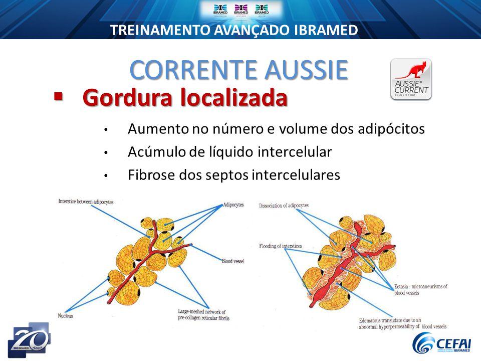 TREINAMENTO AVANÇADO IBRAMED Aumento no número e volume dos adipócitos Acúmulo de líquido intercelular Fibrose dos septos intercelulares CORRENTE AUSSIE  Gordura localizada