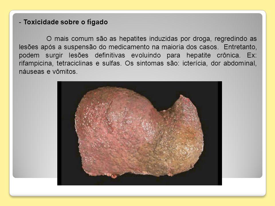 - Toxicidade sobre o fígado O mais comum são as hepatites induzidas por droga, regredindo as lesões após a suspensão do medicamento na maioria dos cas