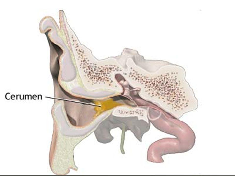 Não servem para limpar o ouvido. Não conseguem extrair a cera. Apenas a empurram mais para dentro, formando um tampão, que diminui a capacidade auditi