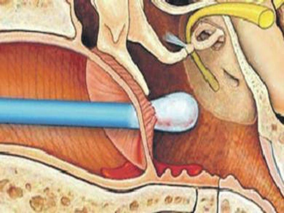 Podereis atingir a membrana, assim: