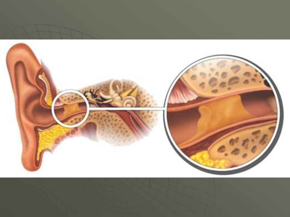 A cera, é uma massa pegajosa, que evita que o pó e pequenas partículas, entrem no ouvido.