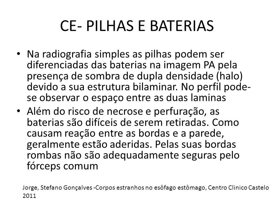CE- PILHAS E BATERIAS Na radiografia simples as pilhas podem ser diferenciadas das baterias na imagem PA pela presença de sombra de dupla densidade (halo) devido a sua estrutura bilaminar.