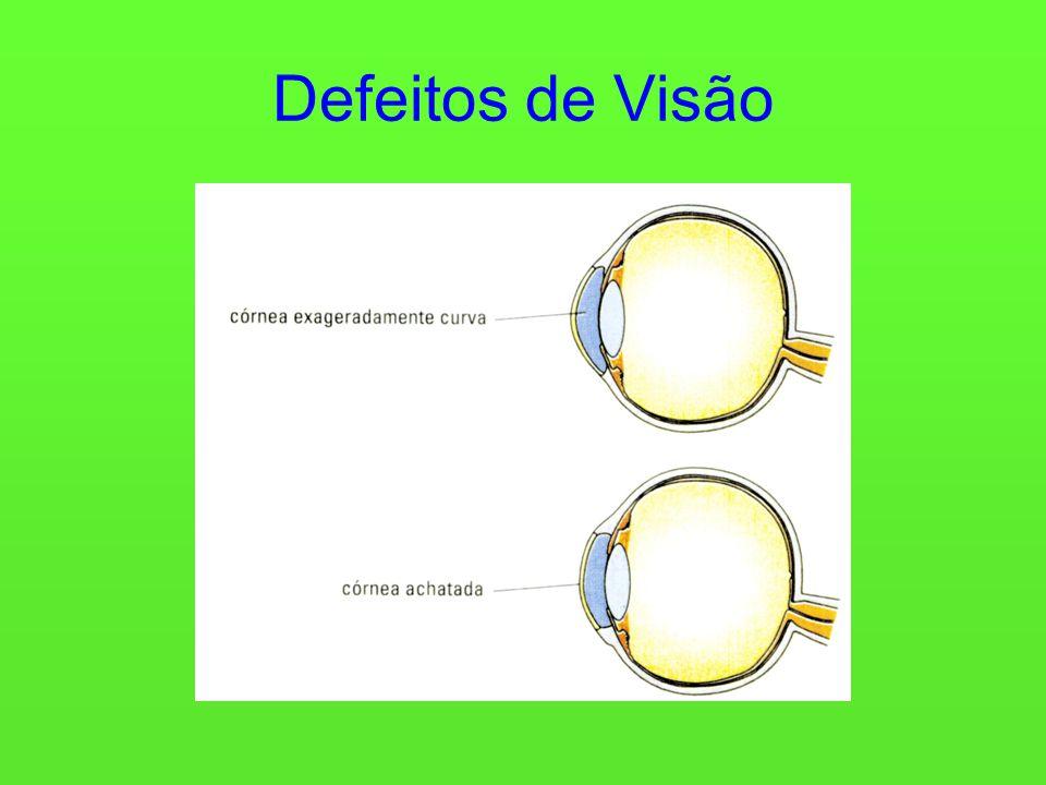 Defeitos de Visão