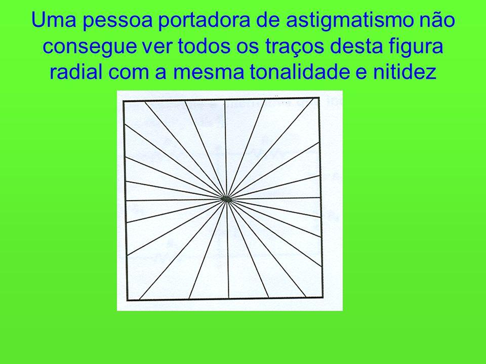 Uma pessoa portadora de astigmatismo não consegue ver todos os traços desta figura radial com a mesma tonalidade e nitidez