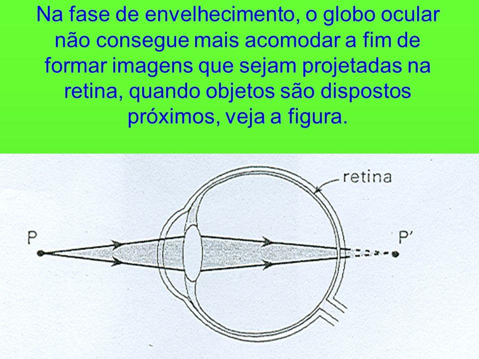 Na fase de envelhecimento, o globo ocular não consegue mais acomodar a fim de formar imagens que sejam projetadas na retina, quando objetos são dispostos próximos, veja a figura.