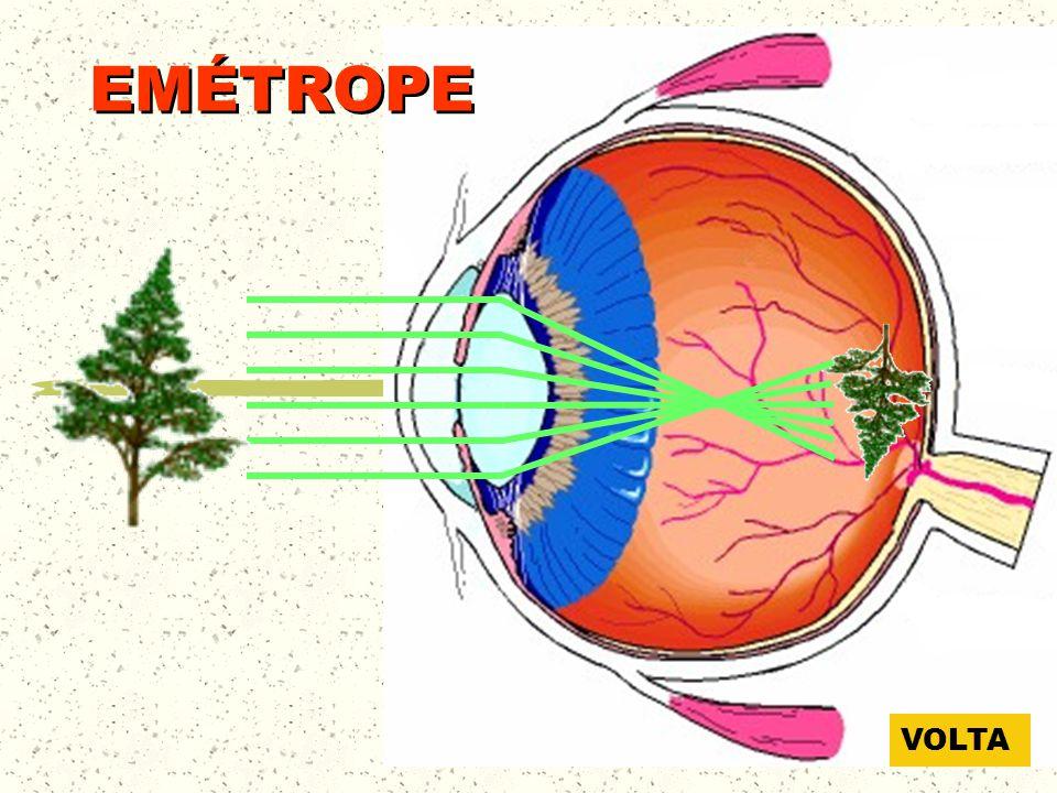 GLOBO OCULAR Esclerótica Coróide Retina Corpo vítreo Íris Pupila Músculo ciliar Córnea Humor aquoso Cristalino Nervo óptico Ponto cego
