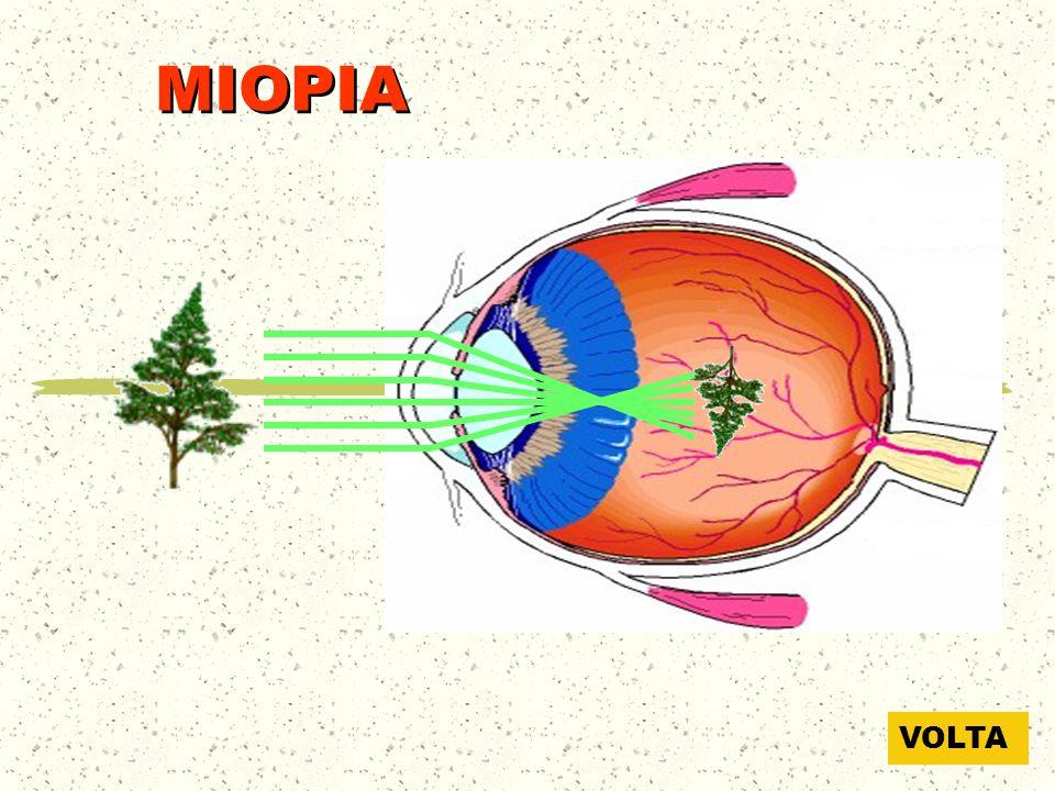 MIOPIA Longe VOLTA