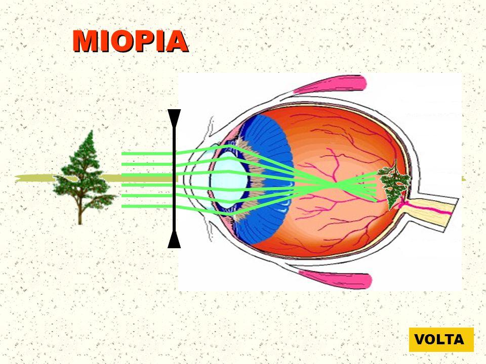 MIOPIA VOLTA