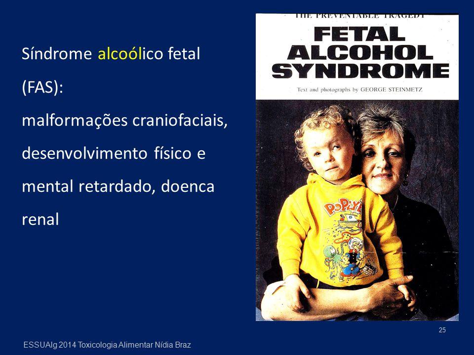25 ESSUAlg 2014 Toxicologia Alimentar Nídia Braz Síndrome alcoólico fetal (FAS): malformações craniofaciais, desenvolvimento físico e mental retardado