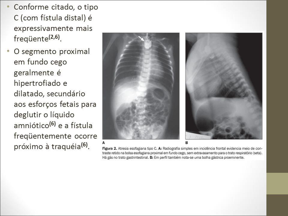 Conforme citado, o tipo C (com fístula distal) é expressivamente mais freqüente (2,6). O segmento proximal em fundo cego geralmente é hipertrofiado e