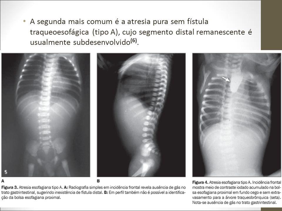 A segunda mais comum é a atresia pura sem fístula traqueoesofágica (tipo A), cujo segmento distal remanescente é usualmente subdesenvolvido (6).