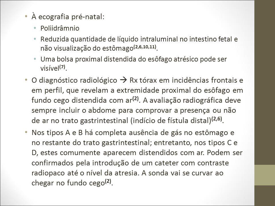 À ecografia pré-natal: Poliidrâmnio Reduzida quantidade de líquido intraluminal no intestino fetal e não visualização do estômago (2,6,10,11). Uma bol