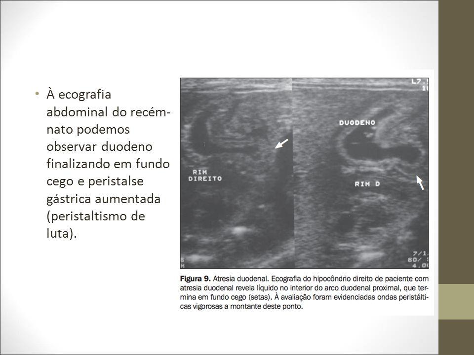 À ecografia abdominal do recém- nato podemos observar duodeno finalizando em fundo cego e peristalse gástrica aumentada (peristaltismo de luta).