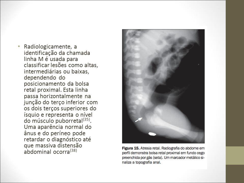 Radiologicamente, a identificação da chamada linha M é usada para classificar lesões como altas, intermediárias ou baixas, dependendo do posicionament