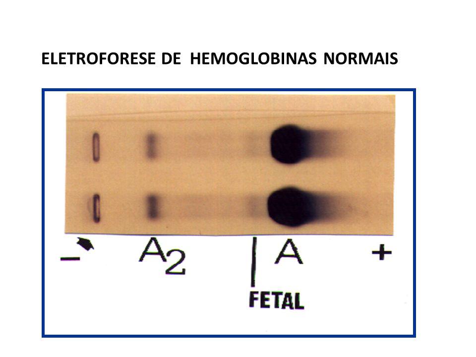      PERÍODO EMBRIONÁRIO  2  2 (Hb Gower 1)  2  2 (Hb Portland)  2  2 (Hb Gower 2)        PERÍODO FETAL  2  2 (Hb Fetal)  2  2