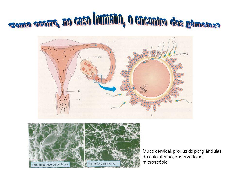 Muco cervical, produzido por glândulas do colo uterino, observado ao microscópio