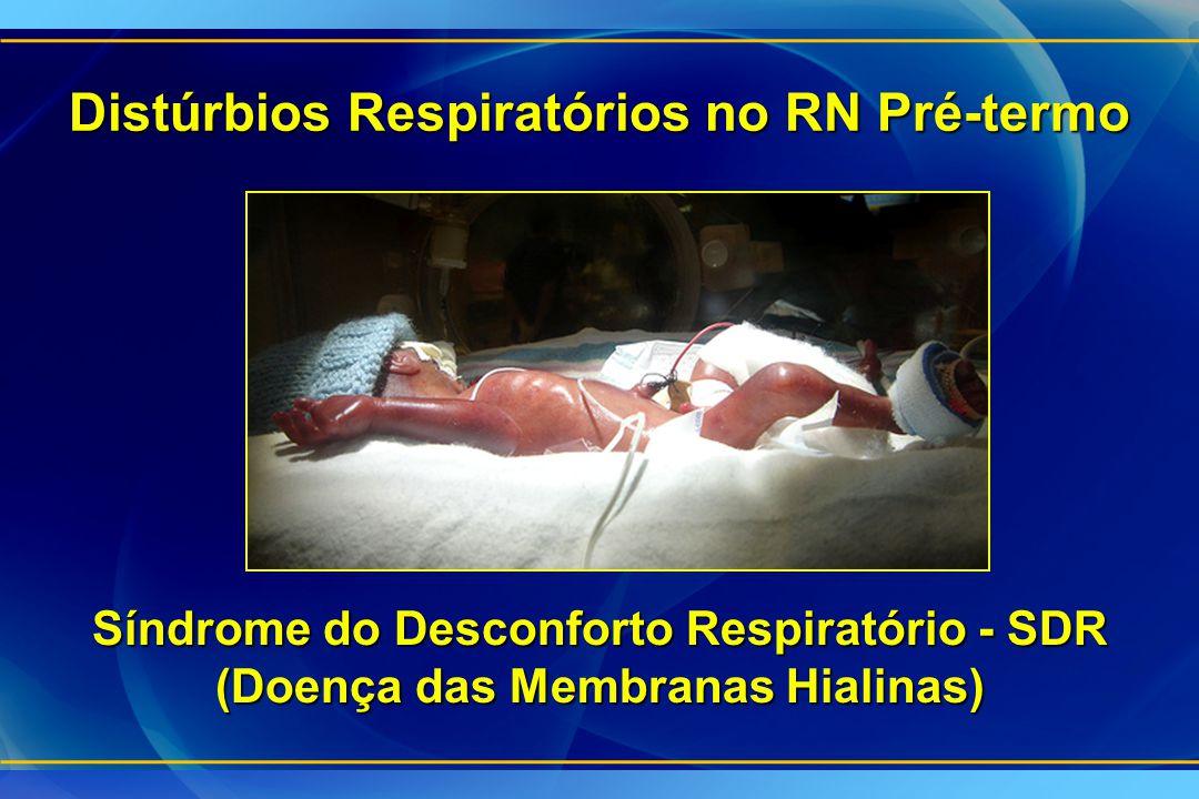 Distúrbios Respiratórios no RN Pré-termo Síndrome do Desconforto Respiratório - SDR (Doença das Membranas Hialinas)