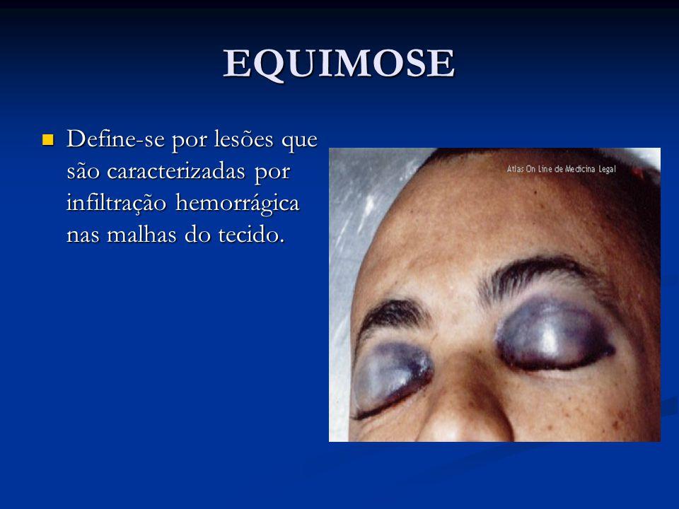 EQUIMOSE Define-se por lesões que são caracterizadas por infiltração hemorrágica nas malhas do tecido. Define-se por lesões que são caracterizadas por