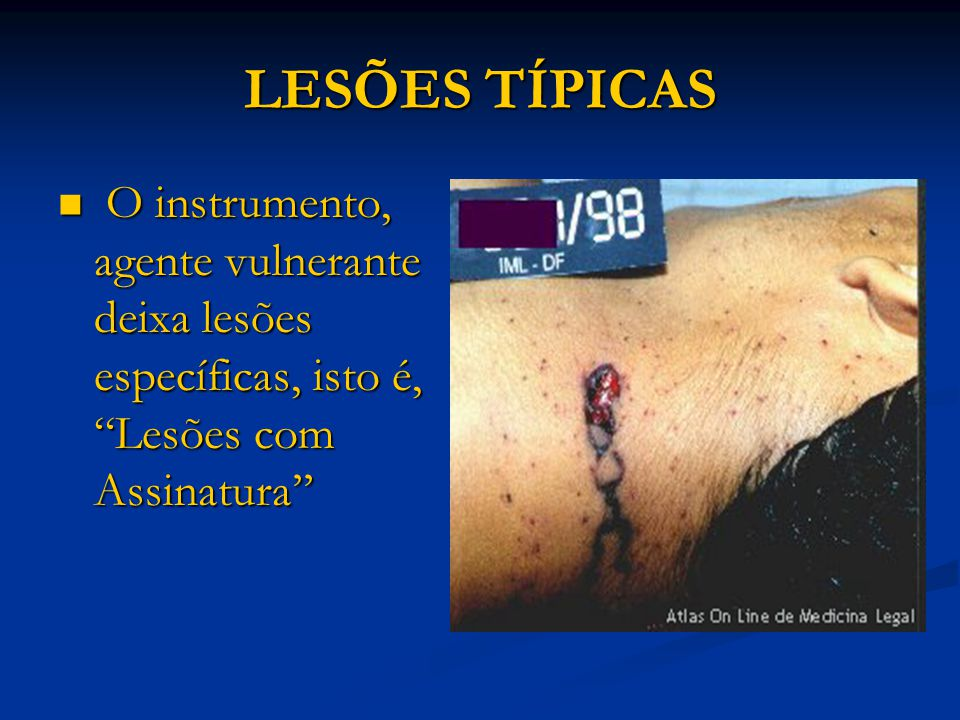 """LESÕES TÍPICAS O instrumento, agente vulnerante deixa lesões específicas, isto é, """"Lesões com Assinatura'' O instrumento, agente vulnerante deixa lesõ"""