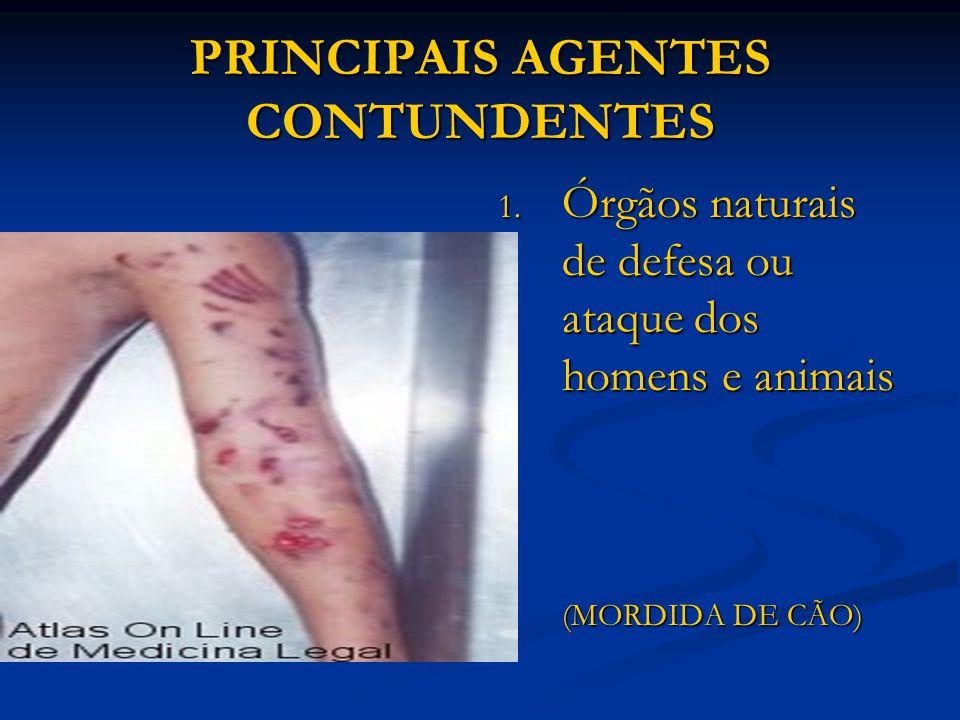 PRINCIPAIS AGENTES CONTUNDENTES 1. Órgãos naturais de defesa ou ataque dos homens e animais (MORDIDA DE CÃO)