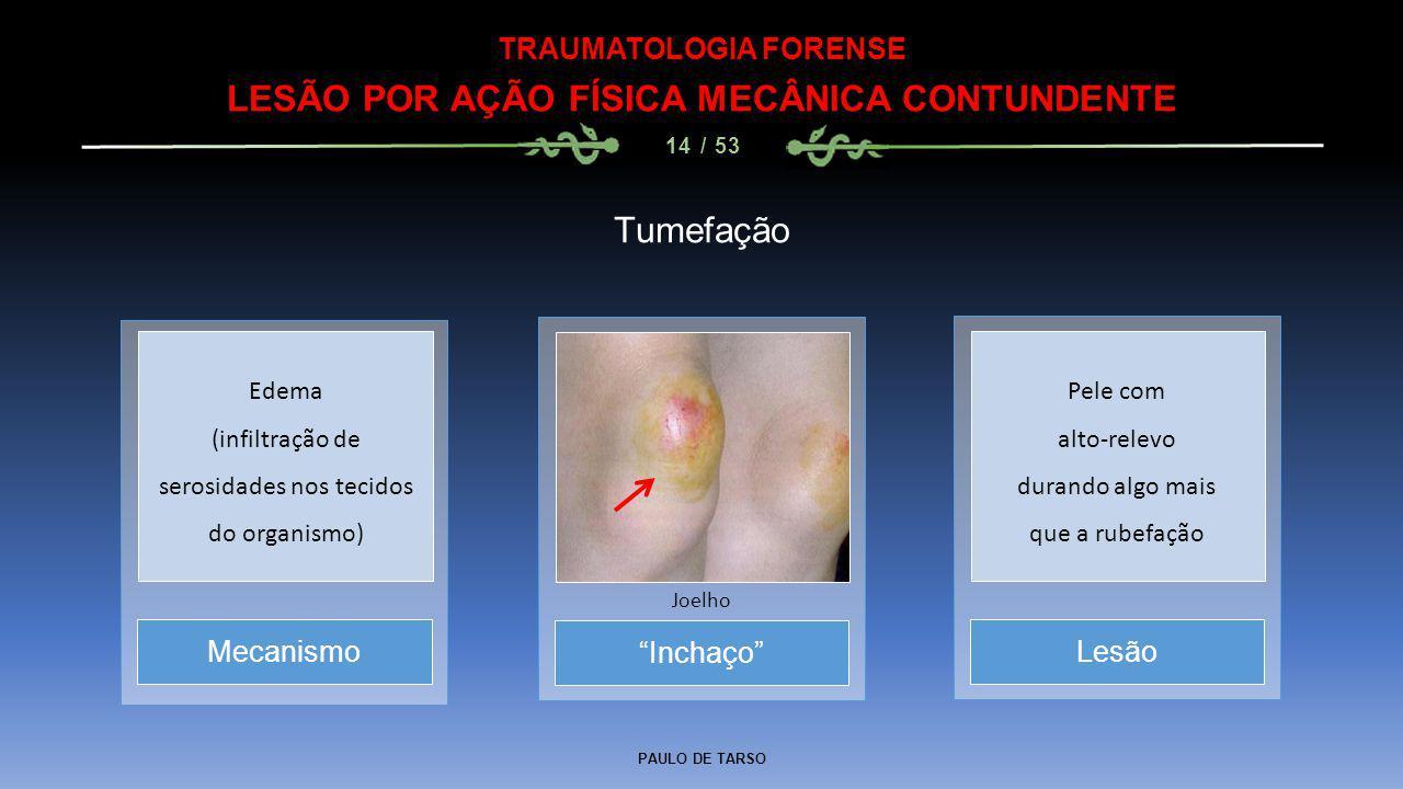 """PAULO DE TARSO TRAUMATOLOGIA FORENSE LESÃO POR AÇÃO FÍSICA MECÂNICA CONTUNDENTE 14 / 53 Tumefação """"Inchaço"""" Joelho MecanismoLesão Edema (infiltração d"""