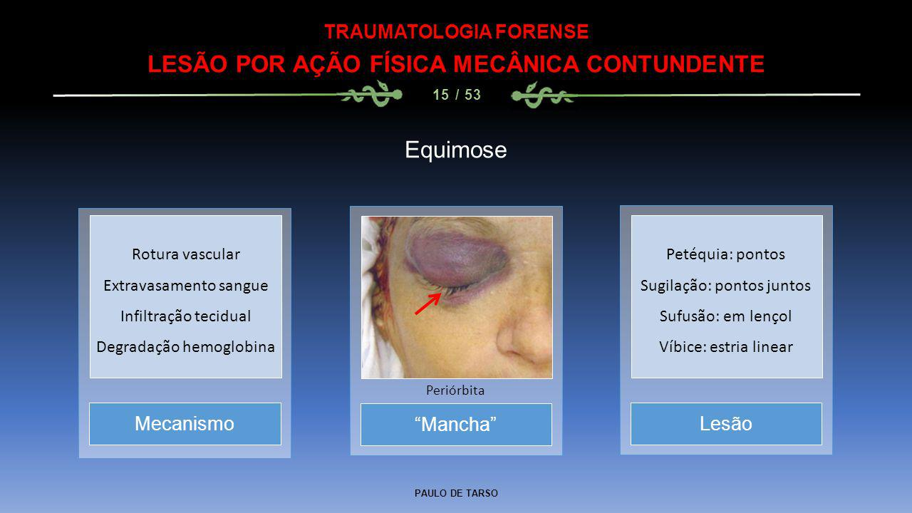 """PAULO DE TARSO TRAUMATOLOGIA FORENSE LESÃO POR AÇÃO FÍSICA MECÂNICA CONTUNDENTE 15 / 53 Equimose """"Mancha"""" Periórbita MecanismoLesão Rotura vascular Ex"""