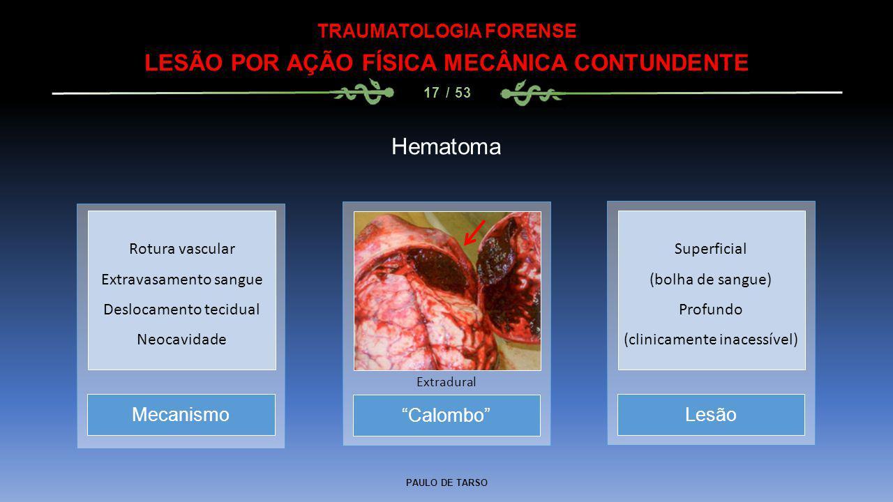 """PAULO DE TARSO TRAUMATOLOGIA FORENSE LESÃO POR AÇÃO FÍSICA MECÂNICA CONTUNDENTE 17 / 53 Hematoma """"Calombo"""" Extradural MecanismoLesão Rotura vascular E"""