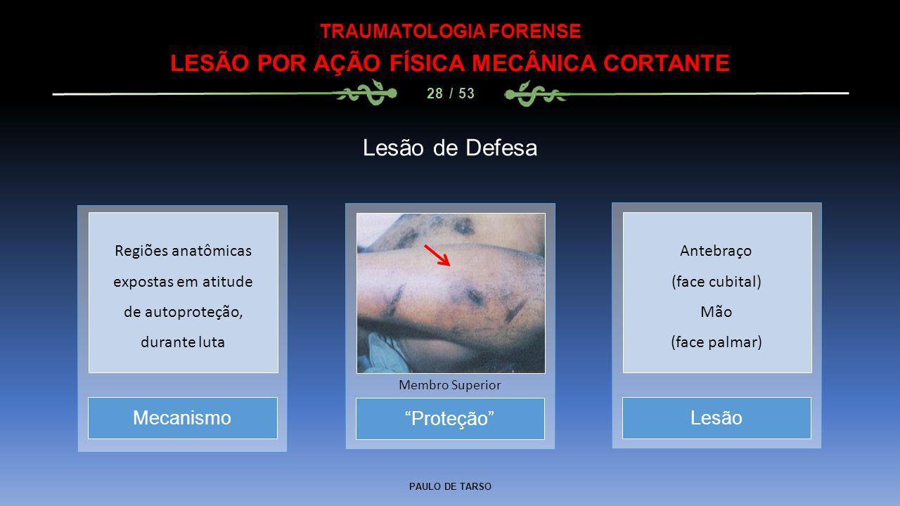 """PAULO DE TARSO TRAUMATOLOGIA FORENSE LESÃO POR AÇÃO FÍSICA MECÂNICA CORTANTE 28 / 53 Lesão de Defesa """"Proteção"""" Membro Superior MecanismoLesão Regiões"""