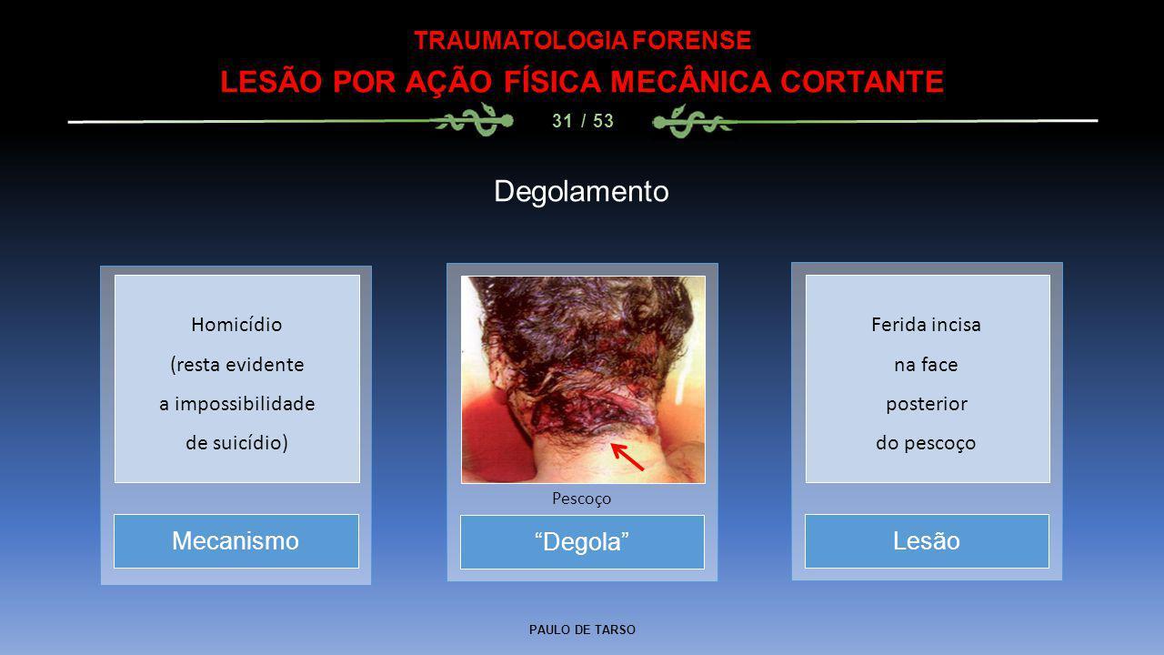 """PAULO DE TARSO TRAUMATOLOGIA FORENSE LESÃO POR AÇÃO FÍSICA MECÂNICA CORTANTE 31 / 53 Degolamento """"Degola"""" Pescoço MecanismoLesão Homicídio (resta evid"""